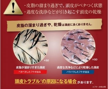 頭皮ニキビの原因は乾燥
